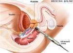 MEDICINA ONLINE BIOPSIA PROSTATICA TRANSRETTALE prostate biopsy transrectal