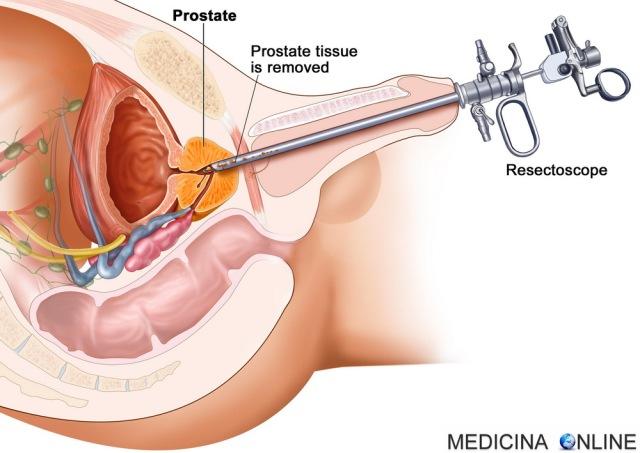 MEDICINA ONLINE BIOPSIA PROSTATICA TRANSURETRALE prostate biopsy transurethral