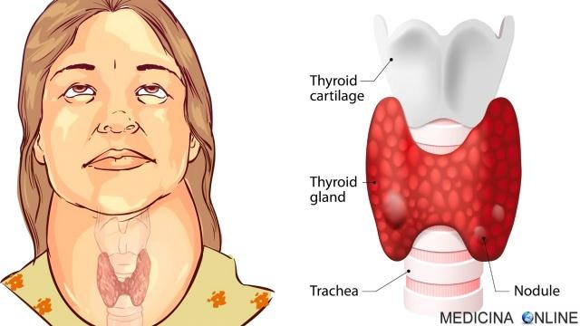 MEDICINA ONLINE IPERTIROIDISMO IPOTIROIDISMO THYROID SEGNI SINTOMI ECOGRAFIA TIROIDE ORMONI TIROIDEI ASSE IPOFISI IPOTALAMO T3 T4 EUTIROX TIROIDEGCTOMIA MORBO BASEDOW GOZZO TOSSICO TIREOTOSSICOSI UOMO SINTOMI INIZIALI.jpg