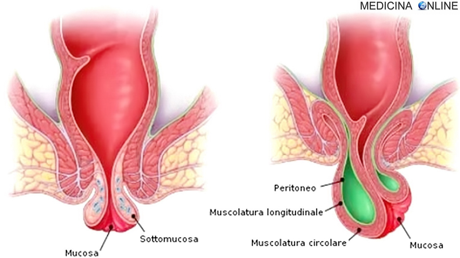 biopsia prostatica che causa diverticolite