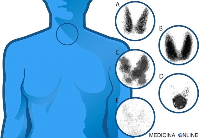 MEDICINA ONLINE SCINTIGRAFIA TIROIDEA COSTO RISULTATI NODULI CALDI FREDDI DIFFERENZA Thyroid scintigraphy.jpg