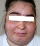 MEDICINA ONLINE SINDROME DI CUSHING Cushing Syndrome IMMAGINE