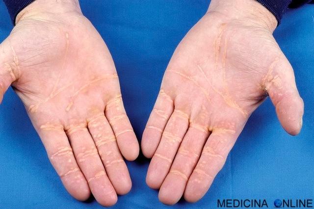 MEDICINA ONLINE Xantoma eruttivo, disseminato, piano, tendineo, tuberoso diagnosi e cura Xantoma Striato Palmare.jpg