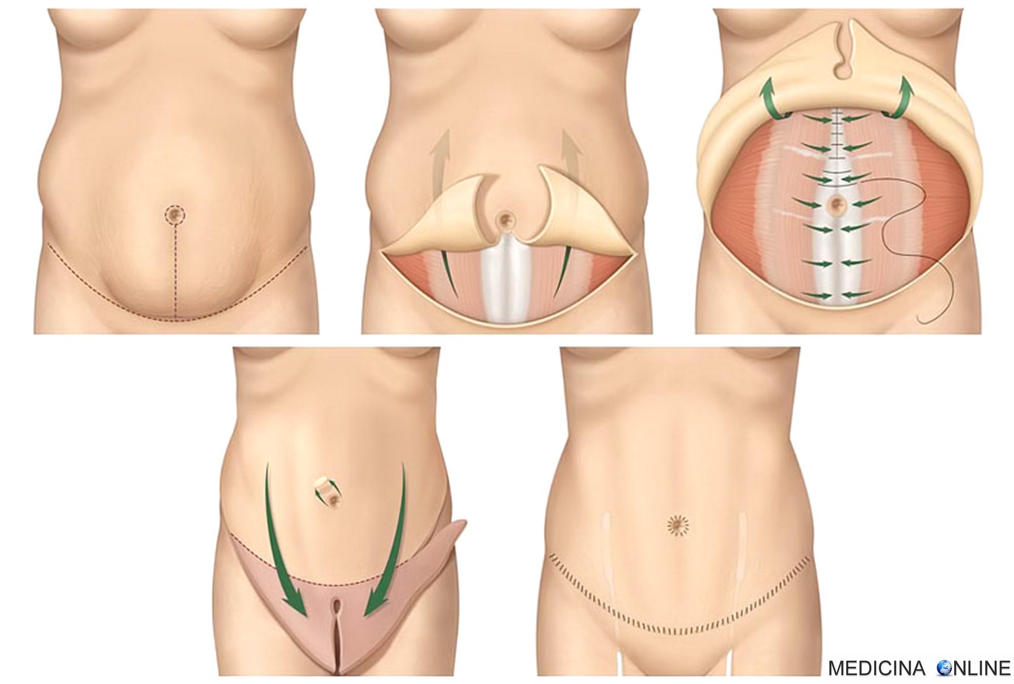 Risultati immagini per addominoplastica