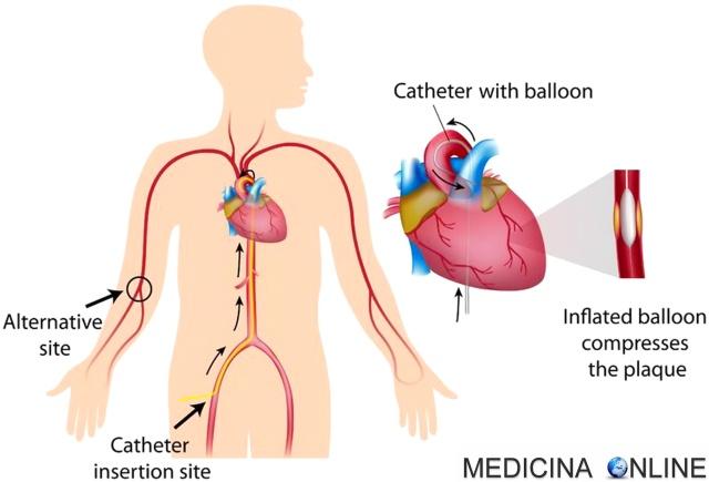 MEDICINA ONLINE ANGIOPLASTICA CORONARICA CUORE INFARTO MIOCARDICO ACUTO SCOMPENSO FREQUENZA CARDIACA  ENZIMI CARDIACI ANGINA PECTORIS ISCHEMIA NECROSI SINDROME CORONARICA CORONARIE STENOSI VALVOLA PROLASSO SANGUE.jpg