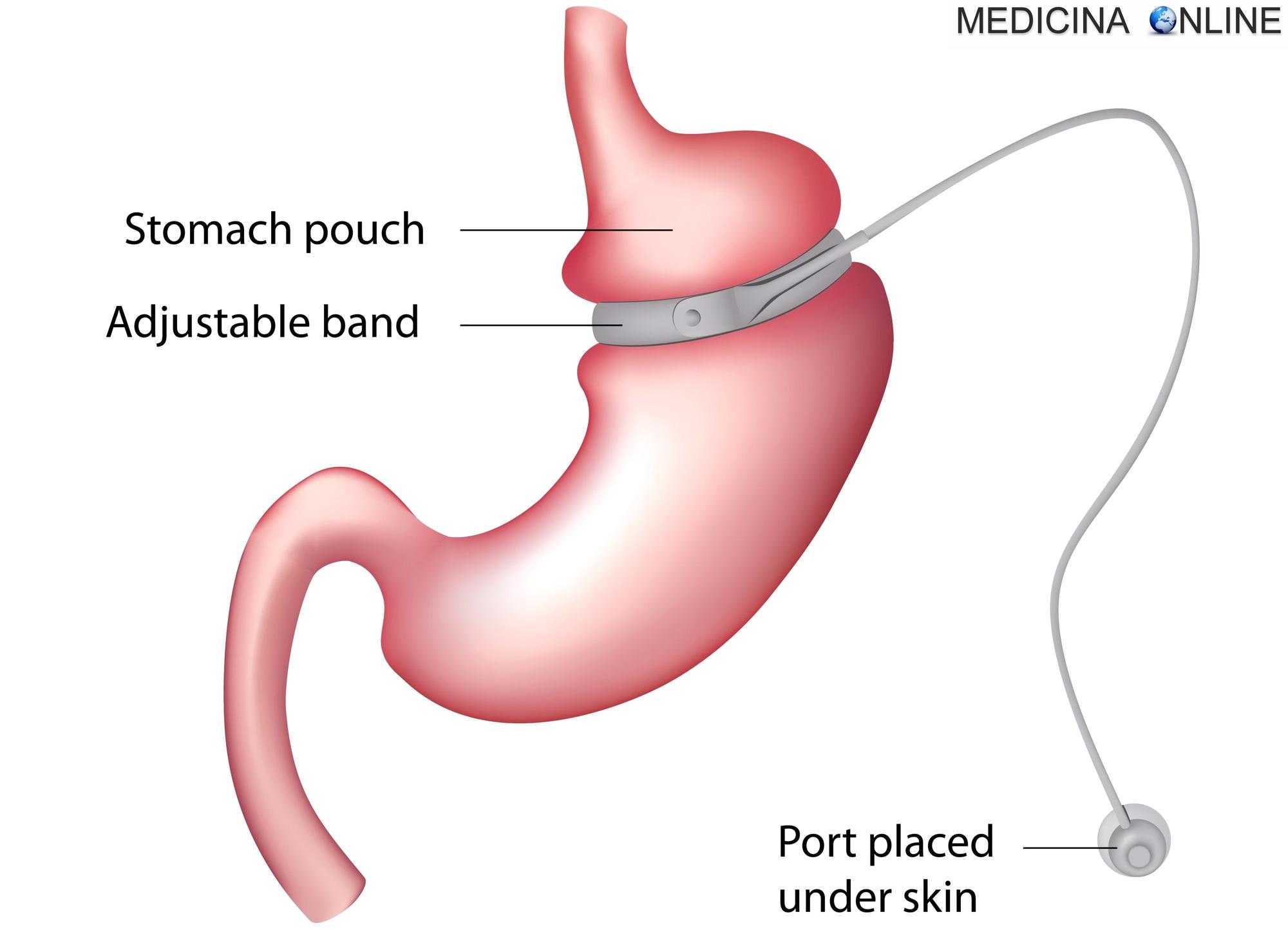 bypass gastrico dieta cosa mangiare prima dell intervento