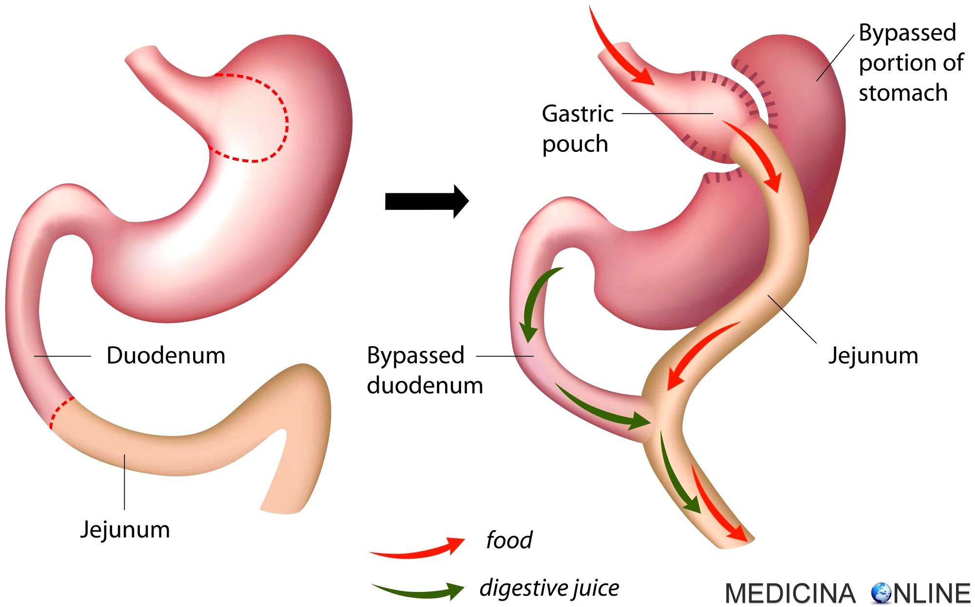 operazione di stomaco per perdere peso negli stati uniti