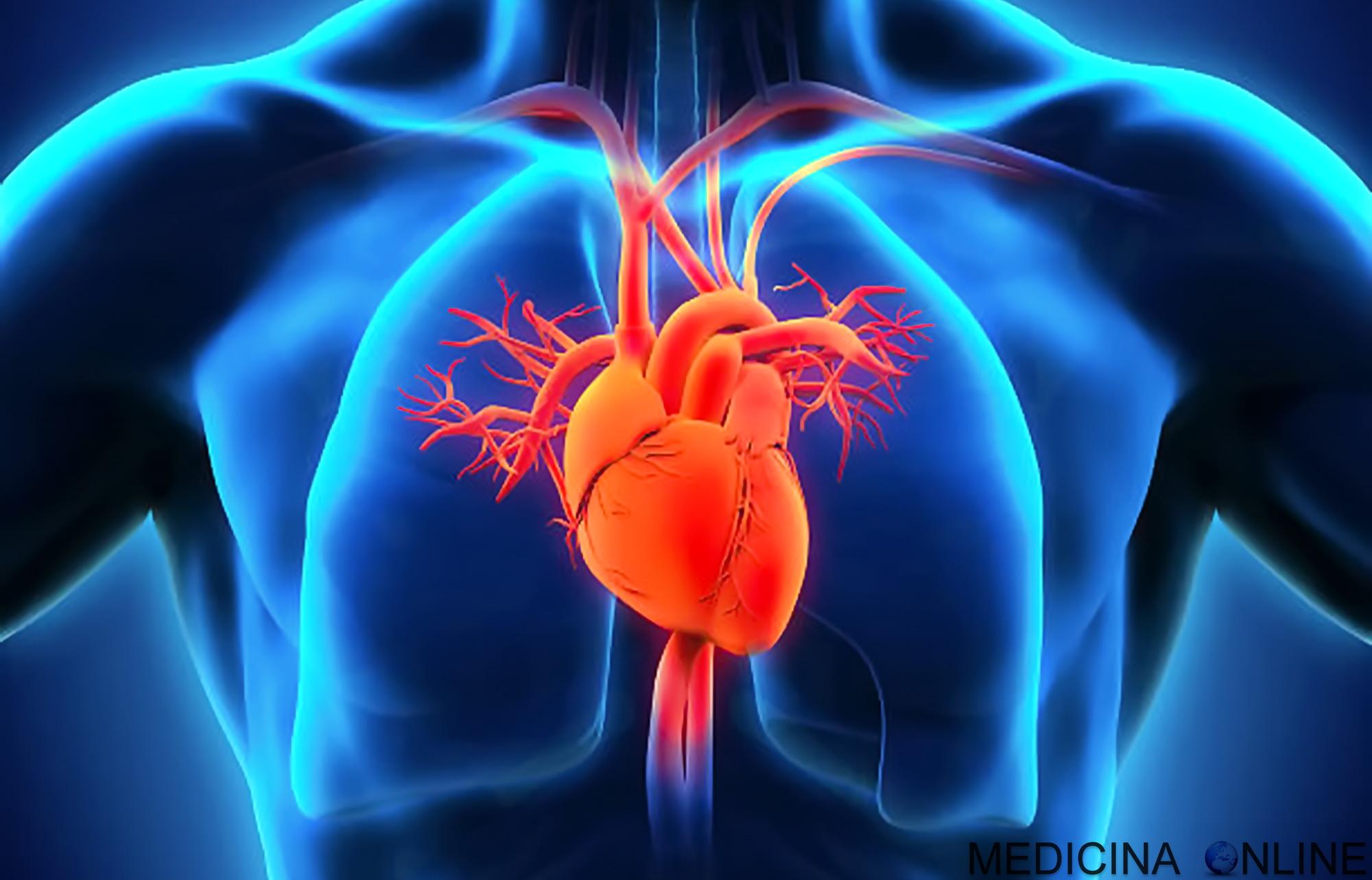 erezione di infarto del miocardio