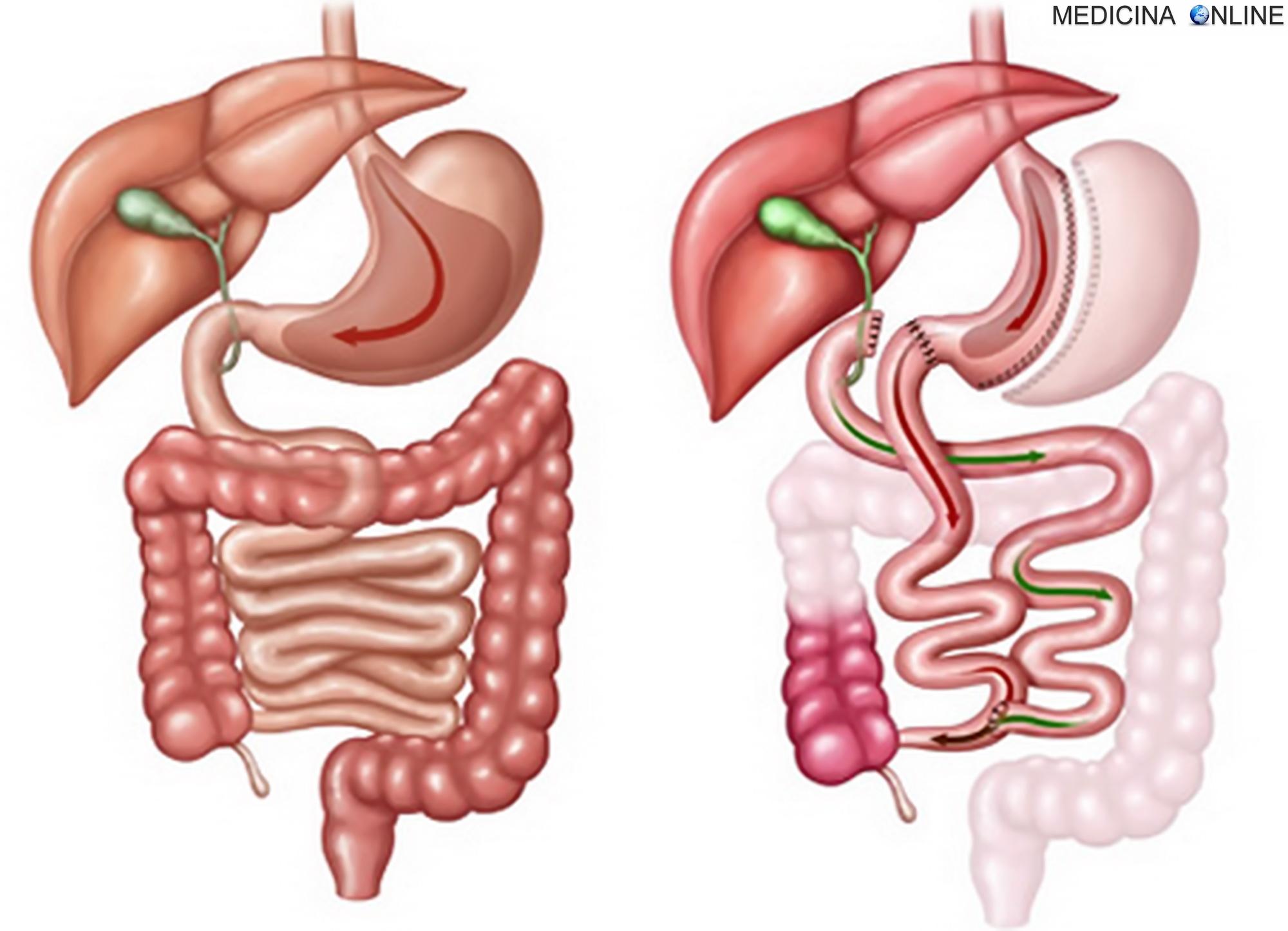 dieta gastrica bypass 3 mesi