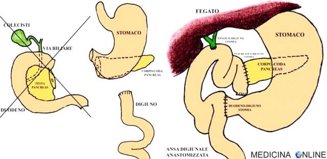 MEDICINA ONLINE Duodenocefalopancresectomia complicanze dieta PANCREAS TESTA COLECISTI CISTIFELLEA STOMACO DUODENO INTESTINO CANCRO TUMORE MORTE SOPRAVVIVENZA ASPETTATIVA DI VITA.jpg