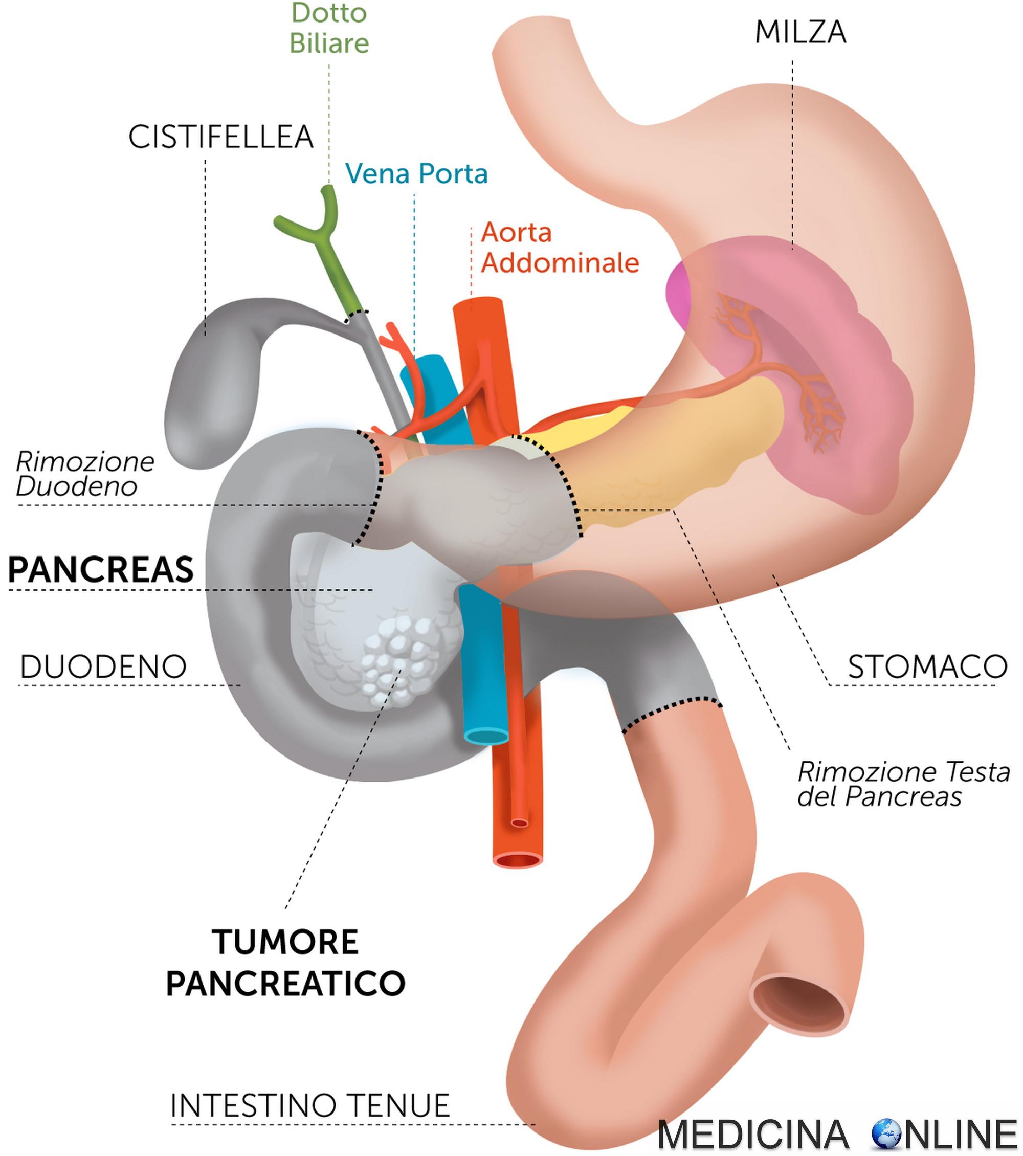 cibi da non mangiare dopo lintervento chirurgico alla prostata