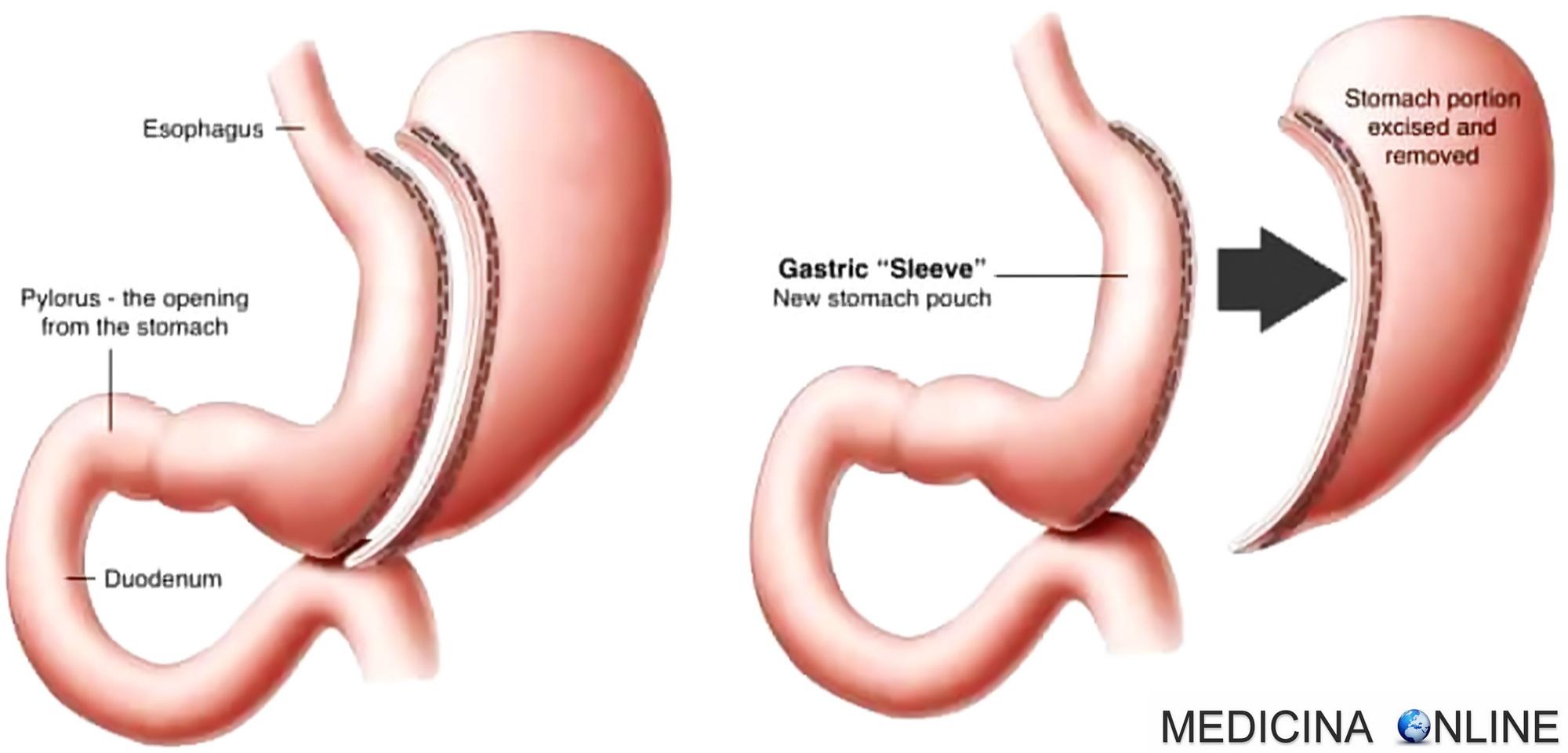 dieta post operatoria tonsillectomia