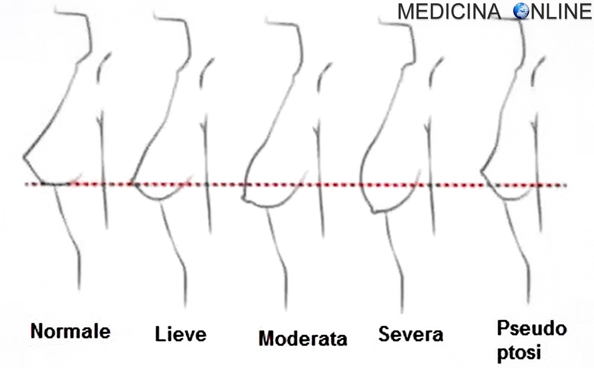 come ridurre il grasso della mammella dopo il parto