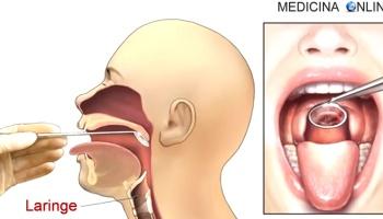 pene inserito nella gola)