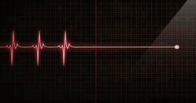 MEDICINA ONLINE FLATLINE LINEA PIATTA CUORE ELETTROCARDIOGRAMMA MORTE SISTOLE ASISTOLIA MASTURBAZIONE COMPULSIVA REBOOT TERAPIA.jpg