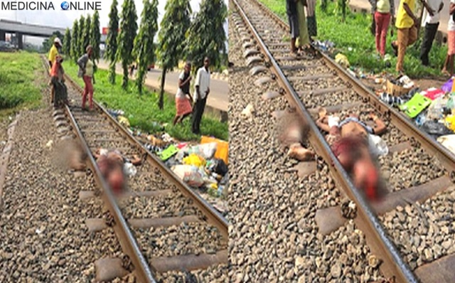 MEDICINA ONLINE INCIDENTE TRENO INVESTITO MORTE PEZZI CORPO DECAPITATO TRAIN DEATH DEAD PIC IMAGE PICS HEAD BINARI COLLISIONE MEDICINA LEGALE.jpg