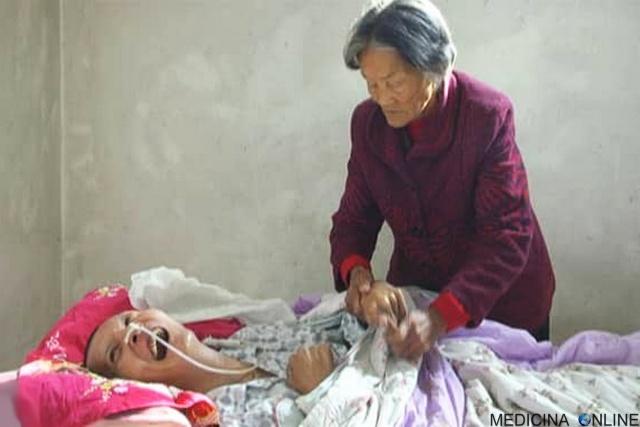 MEDICINA ONLINE Wang Shubao MOTHER Wei Mingying CINA Si sveglia dopo 12 anni di coma la madre 75enne lo ha accudito giorno e notte.jpg