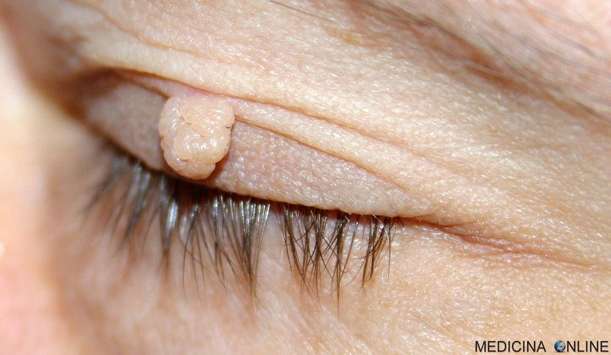 Papilloma occhio sintomi Papilloma occhio