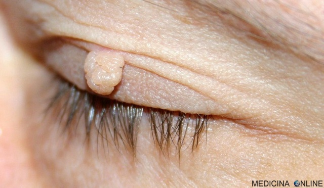 MEDICINA ONLINE Fibroma pendulo porro cause sintomi diagnosi PELLE CUTE DERMA DERMATOLOGO PORRO COME ELIMINARLO