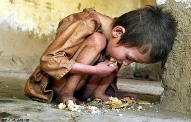 MEDICINA ONLINE Il cibo è una cosa preziosa a cui non tutti hanno accesso non sprechiamolo mai POVERTA AMORE POVERO SOLO FAMIGLIA BAMBINO BIMBO MALNUTRIZIONE DIFETTO SOLDI ALIMENTI ALIMENTARI DIETA PESO DIMAGRIRE TERZO MONDO.jpg