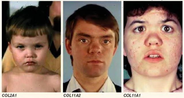 MEDICINA ONLINE Sindrome di Stickler.jpg