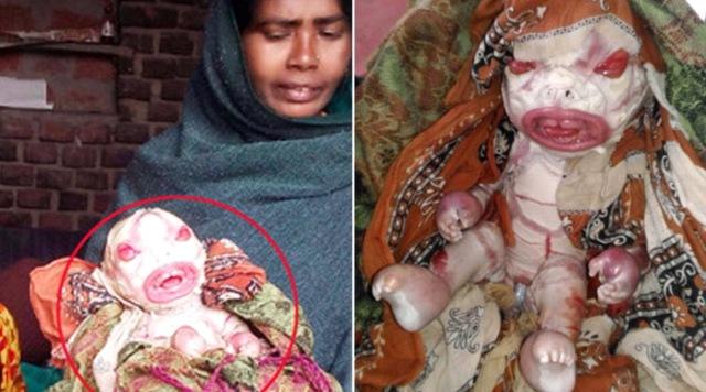 MEDICINA ONLINE Baby With Harlequin Ichthyosis Bimba nasce con ittiosi arlecchino ma la madre la rifiuta Non la voglio, è una maledizione.jpg