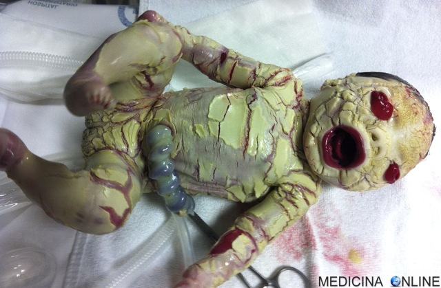 MEDICINA ONLINE ITTIOSI ARLECCHINO Harlequin type ichthyosis IMMAGINE