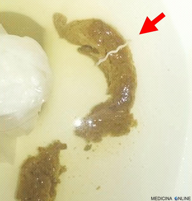 immagini di parassiti intestinali nelluomo