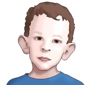 MEDICINA ONLINE Sindrome dell'X fragile in uomini e donne sintomi prognosi aspettativa di vita cure trattamenti famiglia bimbo bambino pediatria segni intelligenza ritardo mentale scuola logopedia 2.jpg