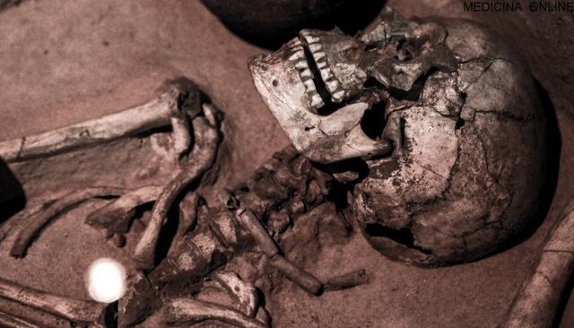 MEDICINA ONLINE FRACTURED SKULL CRANIO TESCHIO UMANO RESTI CADAVERE DECOMPOSIZIONE PUTREFAZIONE MORTO MORTE DECESSO DECEDUTO TRAPASSO BARA ZINCO INUMAZIONE MUMMIA MUMMIFICAZIONE LIVOR RIGOR ALGOR MORTIS LEGALE CRIMINOLOGIA.jpg
