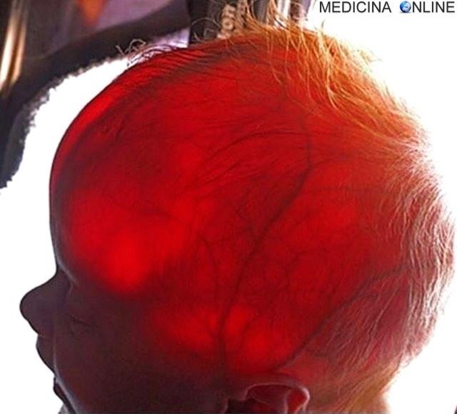 MEDICINA ONLINE Transilluminazione della testa di un neonato per la diagnosi di idrocefalo.jpg
