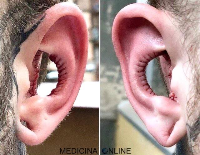 MEDICINA ONLINE Asportazione di parte del padiglione auricolare orecchio una moda pericolosa