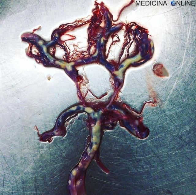 MEDICINA ONLINE CIRCOLO POLIGONO DI WILLIS CON ATEROSCLEROSI FATTORI DI RISCHIO MORBO MALATTIA ALZHEIMER.jpg