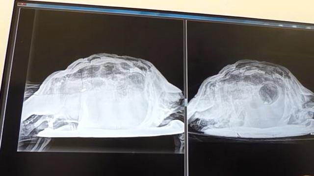 MEDICINA ONLINE Ha forti dolori addominali i medici le trovano una tartaruga infilata nella vagina.jpg