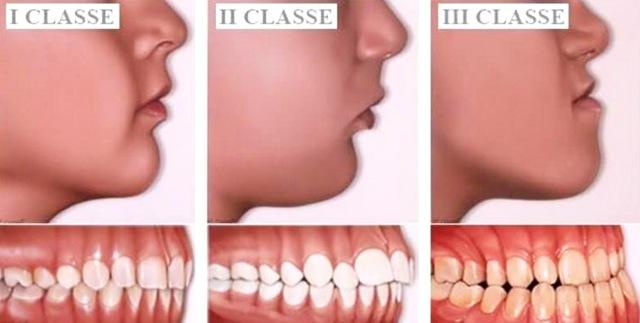 MEDICINA ONLINE Malocclusione dentale di 1° 2° e 3° grado cause sintomi diagnosi cure mandibola storta sporgente piccola indietro mascella denti masticazione postura.jpg