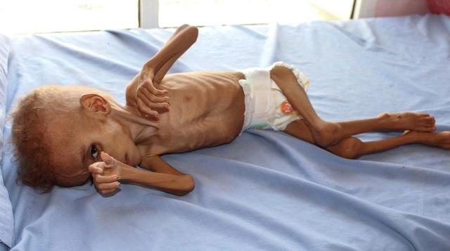 MEDICINA ONLINE Più di 5 milioni di bambini nello Yemen rischiano di morire di fame la peggiore crisi umanitaria del mondo malnutrizione cibo bambino bimbo povero povertà guerra denutrizione malnutrito magro morte fame cibo.jpg