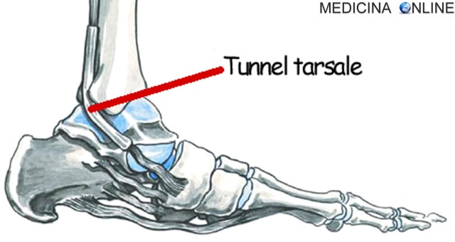 MEDICINA ONLINE NERVO TIBIALE PIEDE TUNNEL TARSIALE SINDROME  DEL TUNNEL TARSALE DOLORE.jpg
