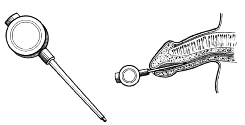 bcaa ed erezione
