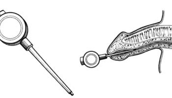 come trattare un pene freddo