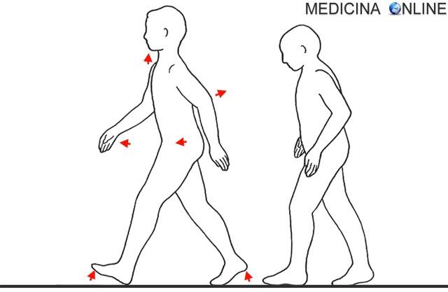 MEDICINA ONLINE Marcia senile Modificazioni della postura e della deambulazione che accompagnano l'invecchiamento Disturbi della deambulazione da lesione dei lobi frontali.jpg