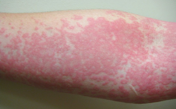 orticaria diagnosi differenziale