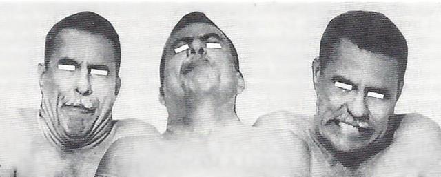 MEDICINA ONLINE sindrome di Meige sindrome di Brueghel Torcicollo spasmodico e spasmi linguali, facciali, oromandibolari, della mano (distonie focali).jpg