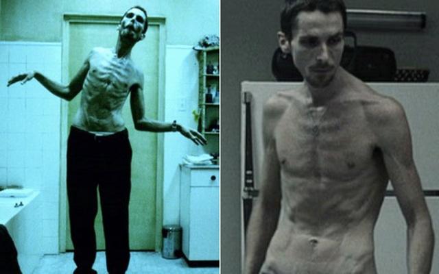 MEDICINA ONLINE Christian Bale The machinist L'UOMO SENZA SONNO INSONNIA DORMIRE FILM CINEMA.