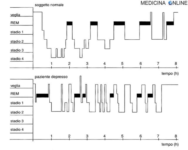 MEDICINA ONLINE IPNOGRAMMA IN SOGGETTO NORMALE E DEPRESSO INSONNIA.jpg