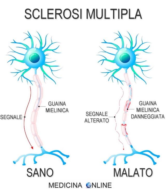 MEDICINA ONLINE SCLEROSI MULTIPLA NEURONE GUAINA MIELINICA.