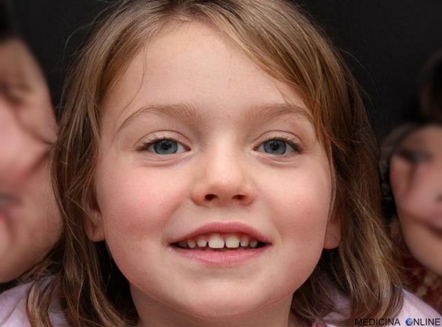 MEDICINA BIMBO BAMBINO BAMBINA FIGLIA KID BABY LITTLE GIRL NEONATO PEDIATRIA DENTI DA LATTE DECIDUI INFANZIA SCUOLA EDUCAZIONE BIMBA FELICE FELICITA FAMIGLIA PEDAGOGIA
