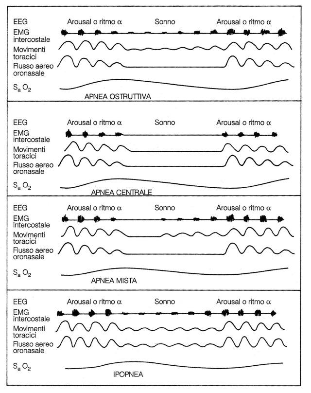 MEDICINA ONLINE Rappresentazione schematica dei vari tipi di apnea e di un'ipopnea. Dall'alto verso il basso apnea ostruttiva, apnea centrae, apnea mista, ipopnea.jpg