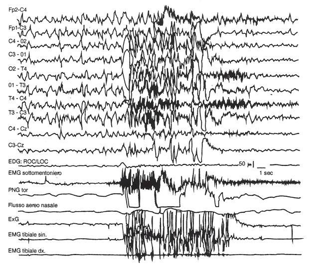 MEDICINA ONLINE POLISONNOGRAFIA Distonia notturna parossistica. Attacchi brevi in corso di sonno (stadio 3). Si evidenzia un evento della durata di 10 secondi.jpg
