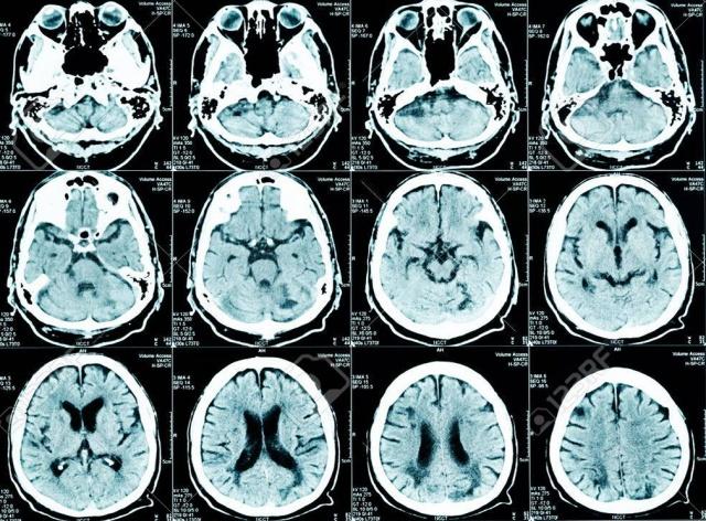 MEDICINA ONLINE NEUROLOGIA NEUROLOGO CERVELLO ENCEFALO SISTEMA NERVOSO RISONANZA MAGNETICA RM TAC TC TOMOGRAFIA COMPUTERIZZATA DIAGNOSTICA PER IMMAGINI RADIOGRAFIA RX DIAGNOSI.jpg