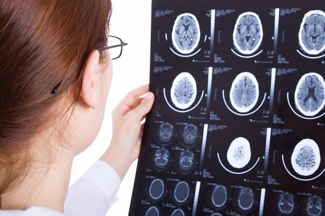 MEDICINA ONLINE NEUROLOGIA NEUROLOGO CERVELLO ENCEFALO SISTEMA NERVOSO RISONANZA MAGNETICA RM TAC TC TOMOGRAFIA COMPUTERIZZATA DIAGNOSTICA PER IMMAGINI RADIOGRAFIA RX